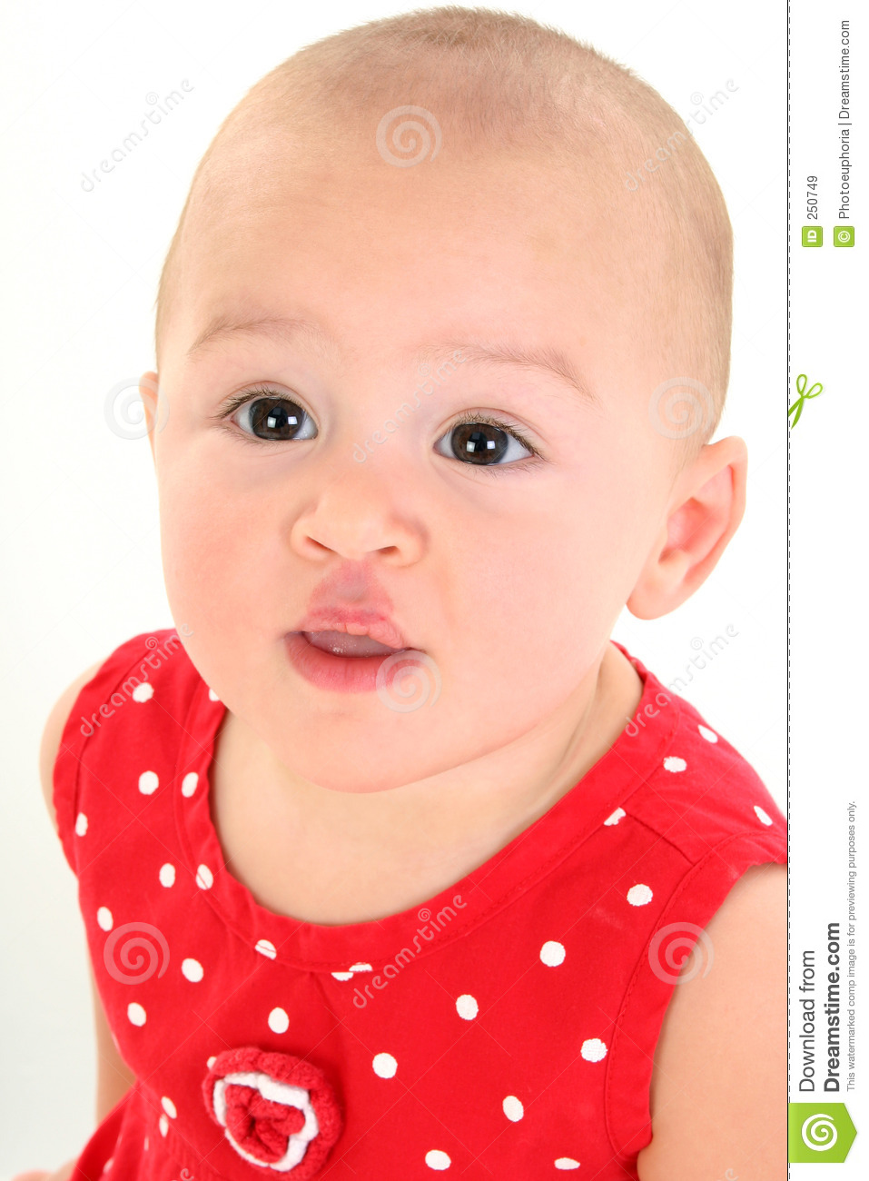 Beautiful Baby Girl With Stork Bite On Upper Lip Royalty Free Stock ...