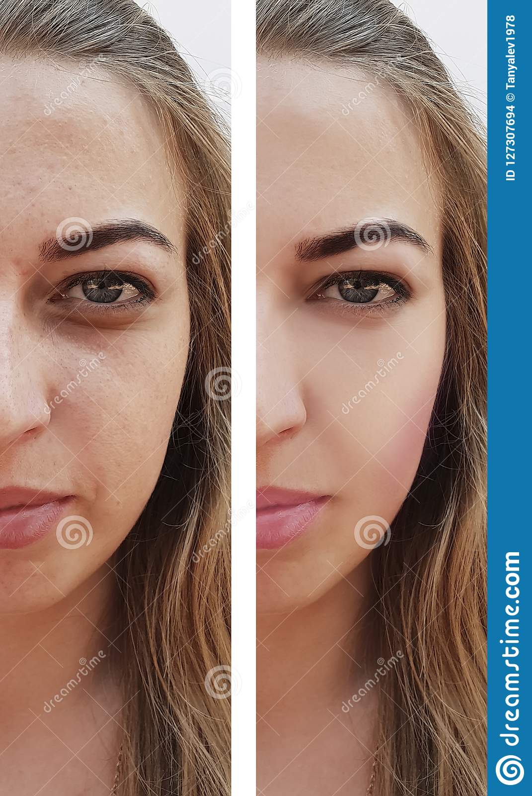 Beautiful girl wrinkles on face before and after removal pigmentation regeneration procedures, pimples
