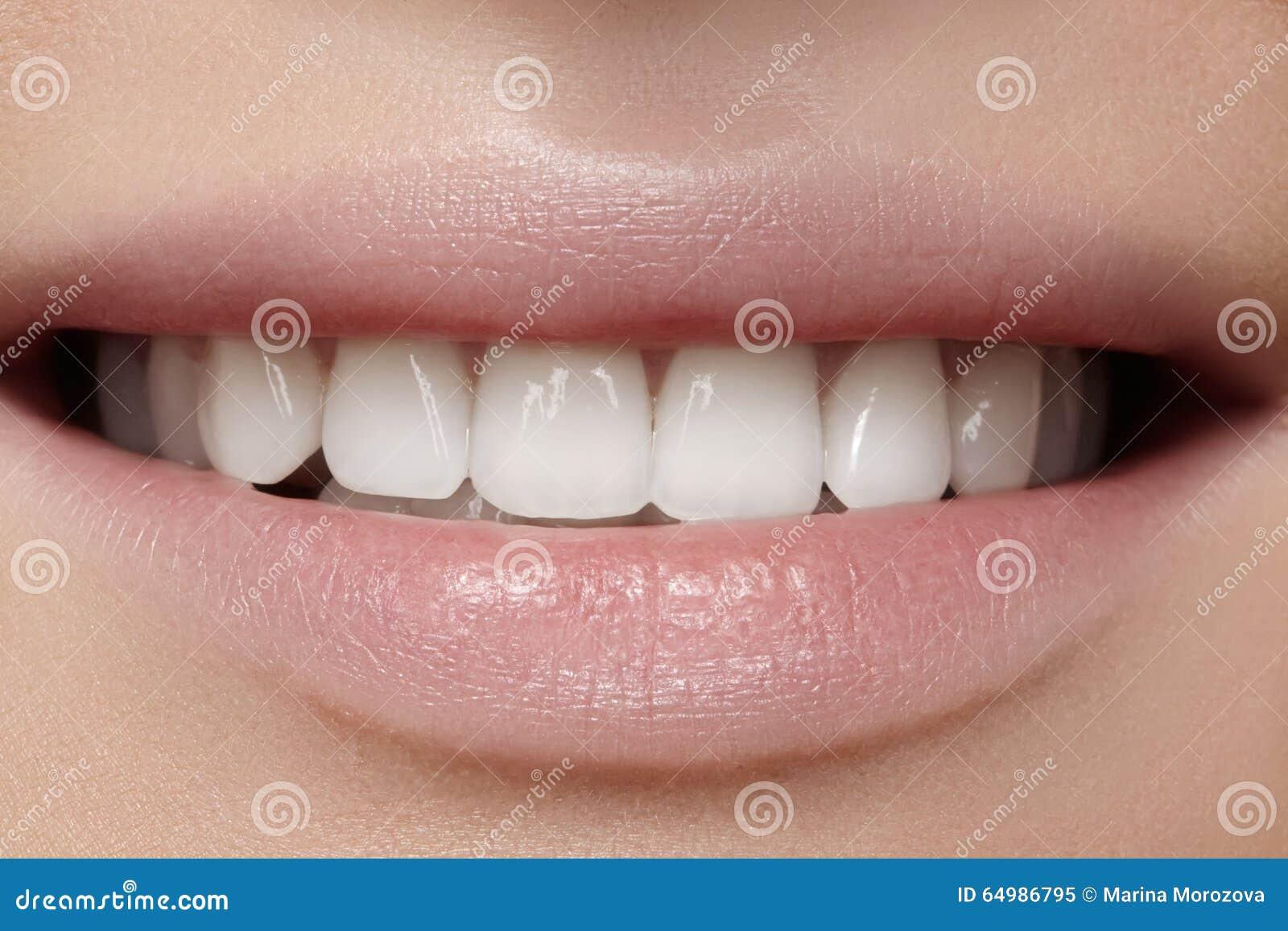 зубы perfect smile veneers видео