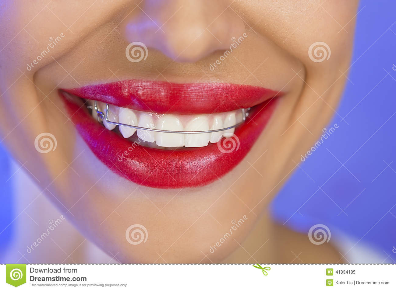 Beautiful Smiling Girl With Retainer For Teeth Close Up