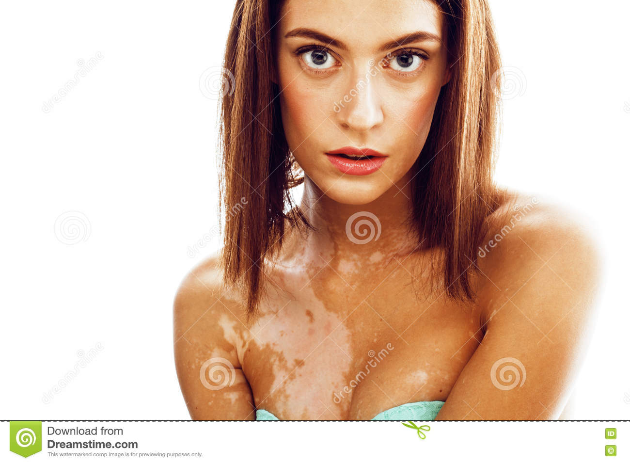 Beautiful Young Brunette Woman With Vitiligo Disease Close Up Isolated On White Positive Smiling Model Problems Concept Stock Photo Image Of Beauty Normal 81364906