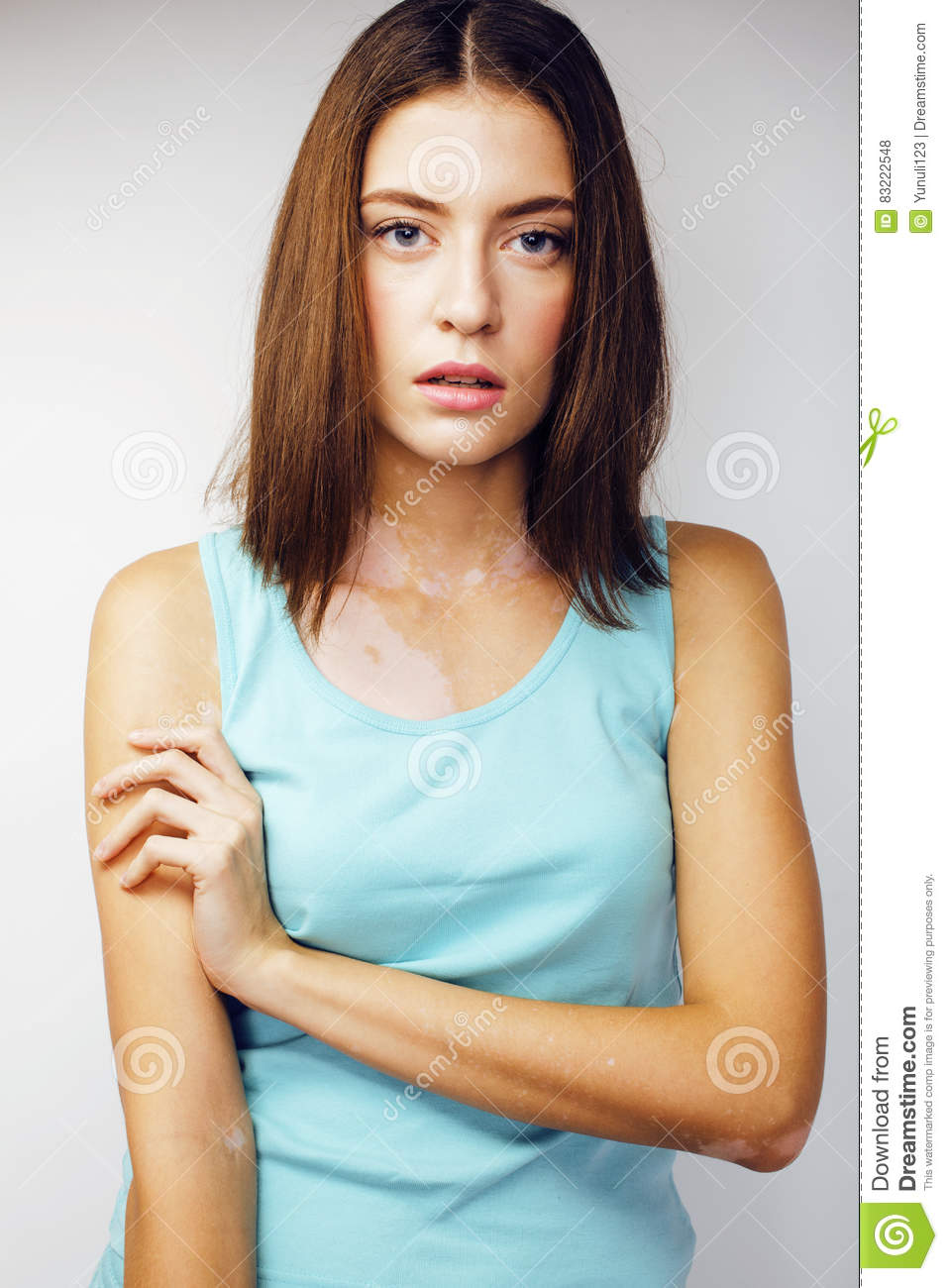 Beautiful Young Brunette Woman With Vitiligo Disease Close Up Isolated On White Positive Smiling Model Problems Concept Stock Photo Image Of Modern Color 83222548