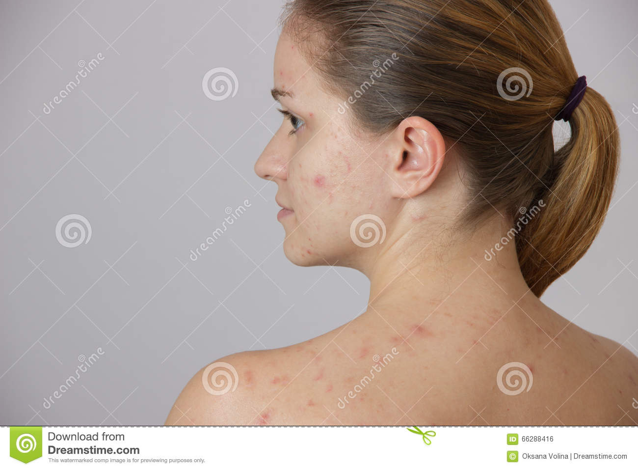Beautiful Young Girl With Acne On His Face And The Back On ...