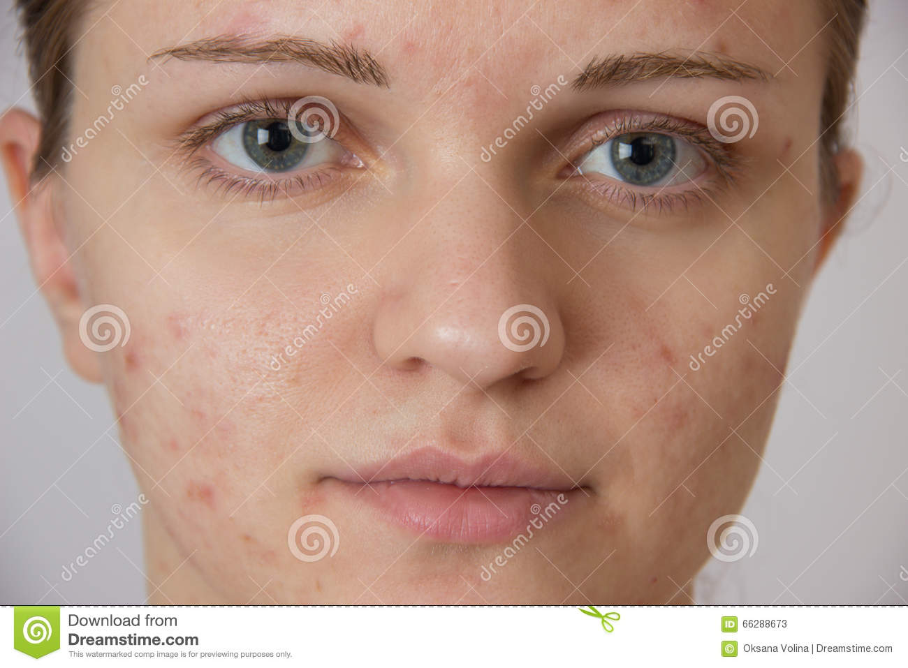 Beautiful young girl with acne on his face and the back on a white background