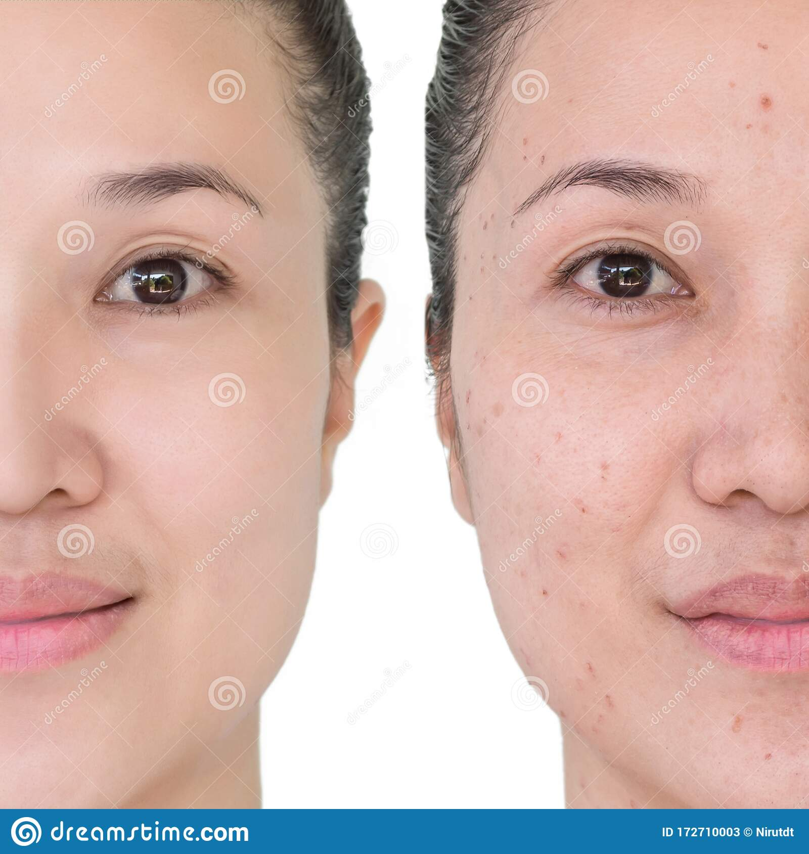 Before And After Laser Treatment Stock Image Image Of Cosmetic