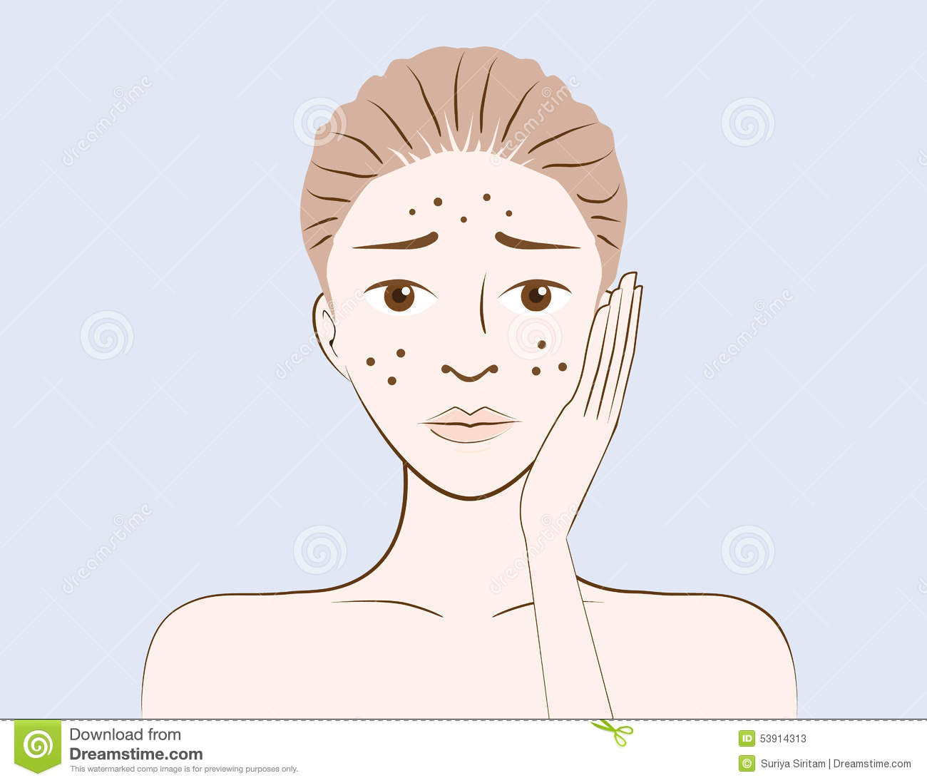 Beauty Women Have Problem Acne Skin Stock Vector