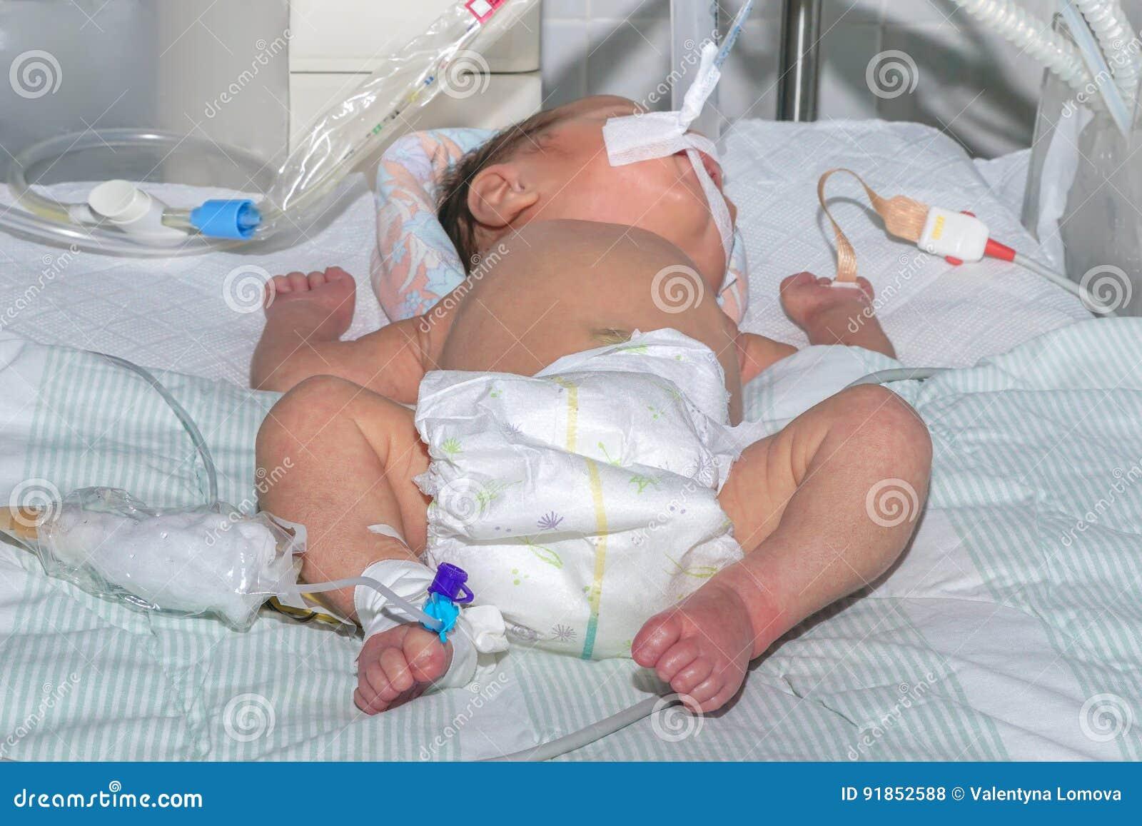 Bebé recién nacido en la máquina de respiración con el sensor del oxímetro del pulso y el catéter intravenoso periférico en el ho