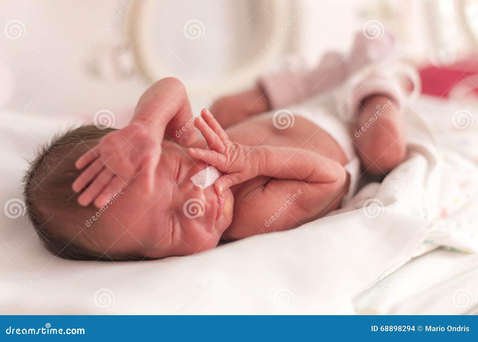 f8fe1b00f Bebé Recién Nacido Prematuro Foto de archivo - Imagen de hospital ...