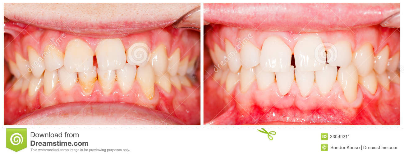 Before And After Plaque Removal Stock Image