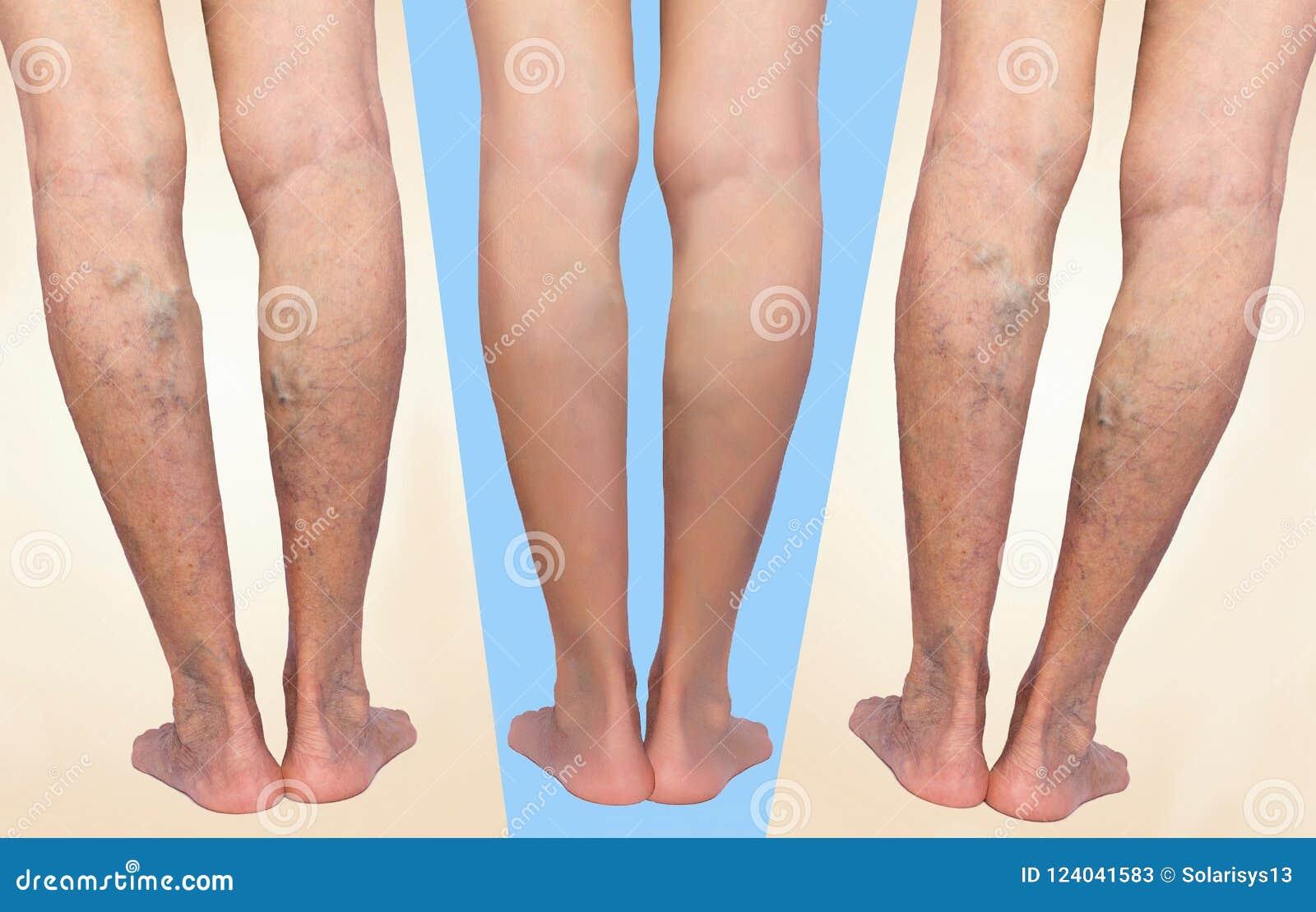 Behandling av åderbråcks före och efter Åderbråcks åder på benen
