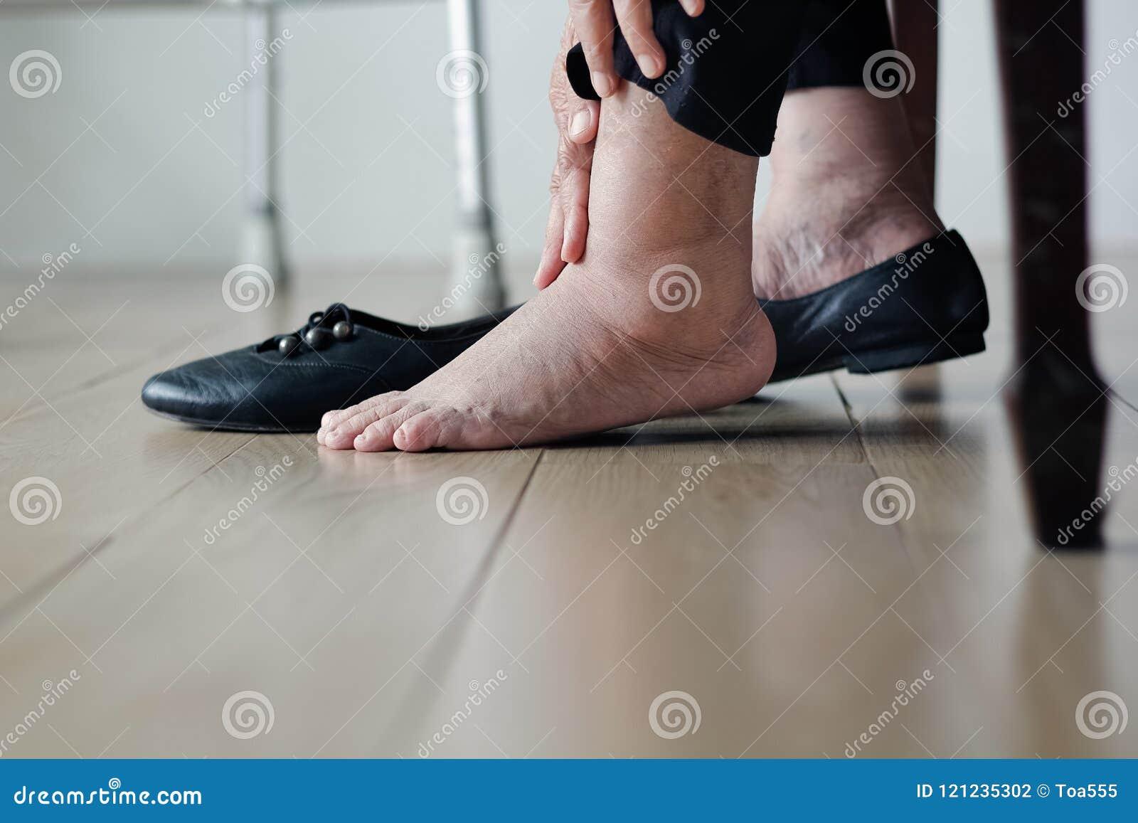 Bejaarde gezwelde voeten die op schoenen zetten