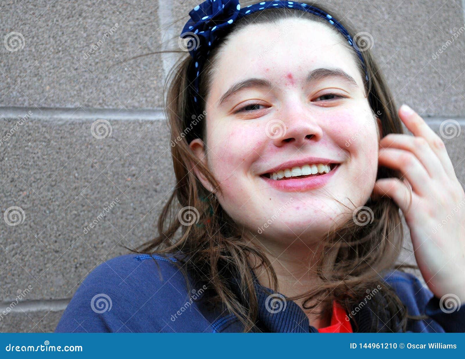 Beleza fêmea com acne
