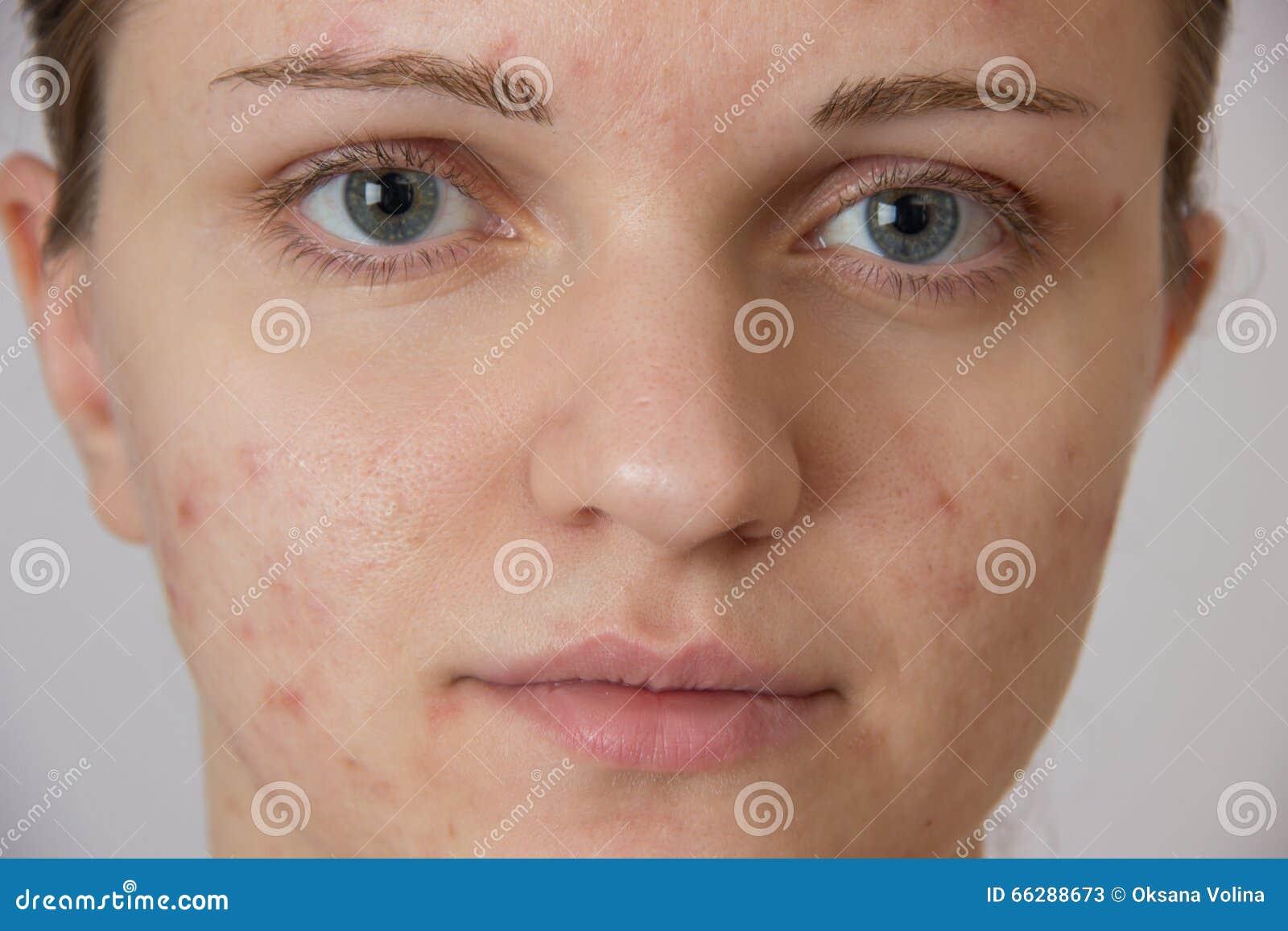 Bella ragazza con acne sul suo fronte e sulla parte posteriore su un whi