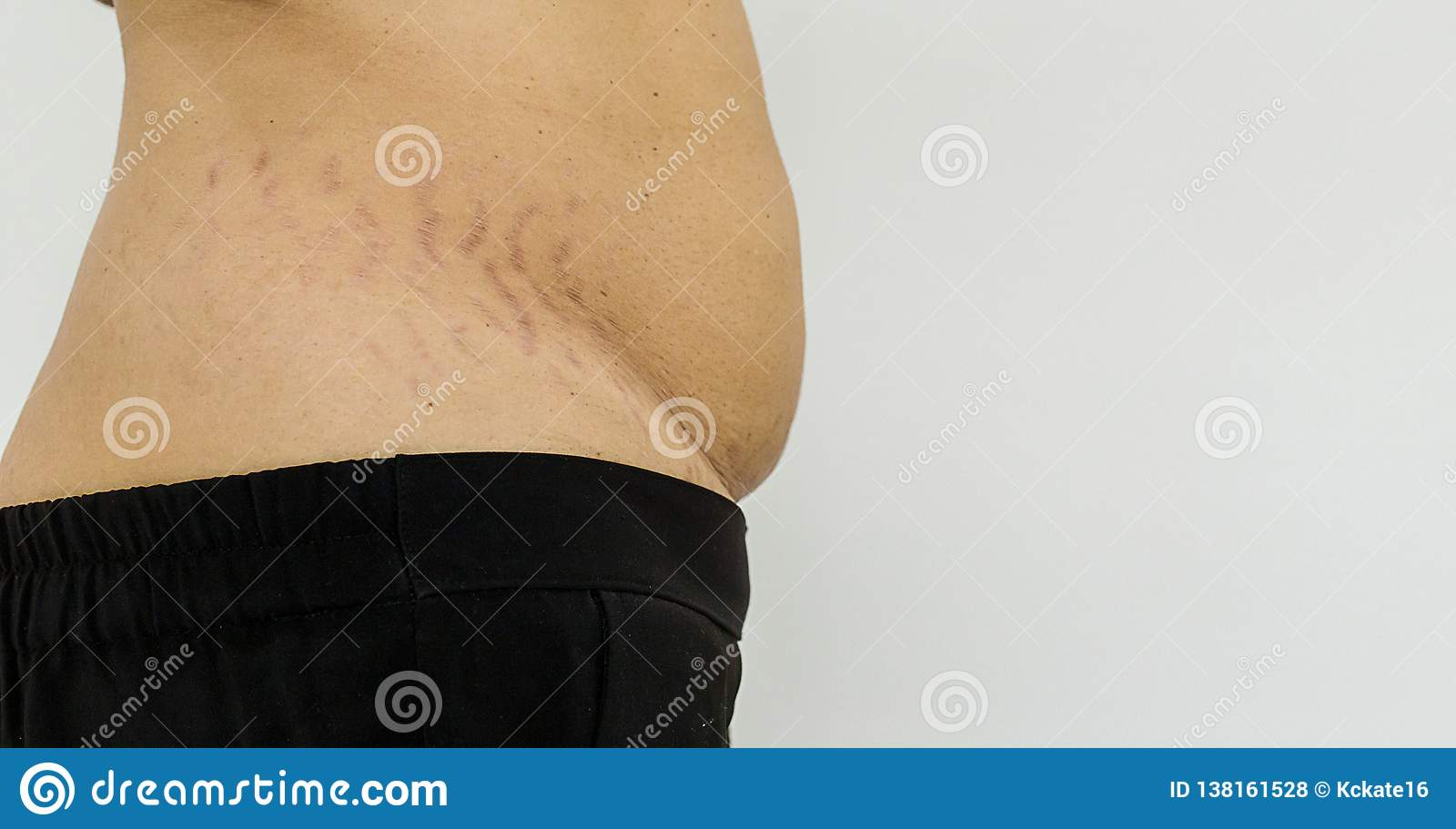 Belly Pattern Fat Stomach Woman  Abdominal Scar Marked