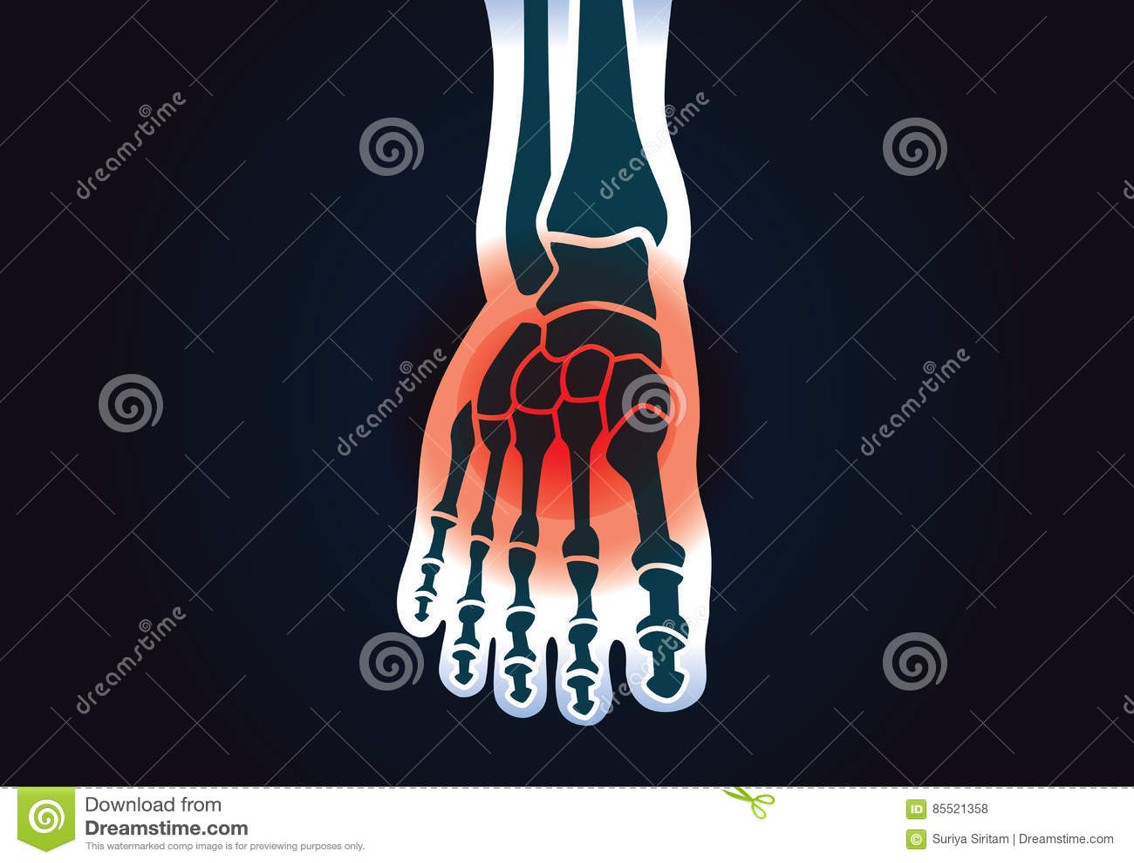 Benet för den mänskliga foten har en röd signal