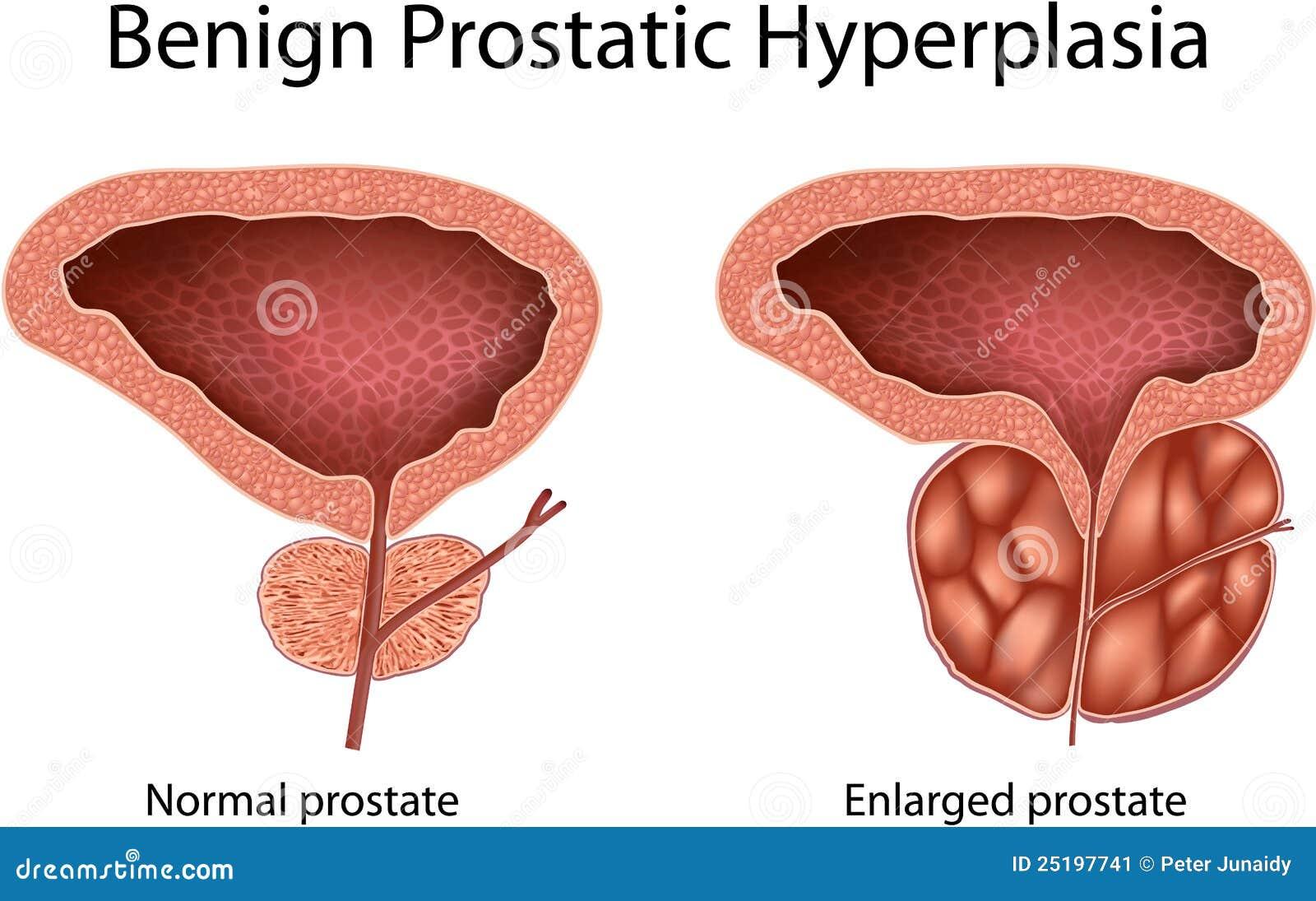 Prostaty hiperplázia