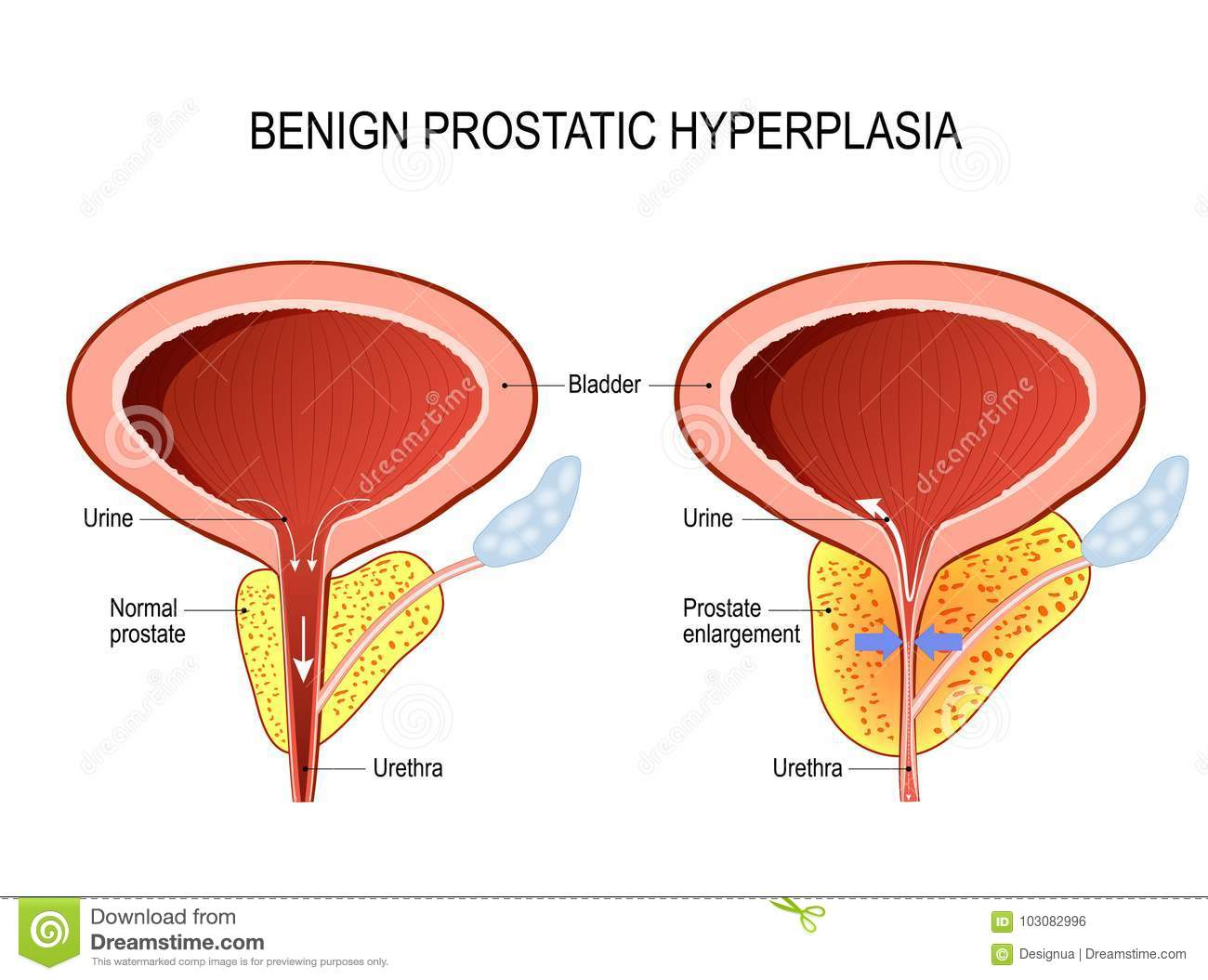 hyperplasia diagram bph cartoons, illustrations & vector stock images - 64 ... #15