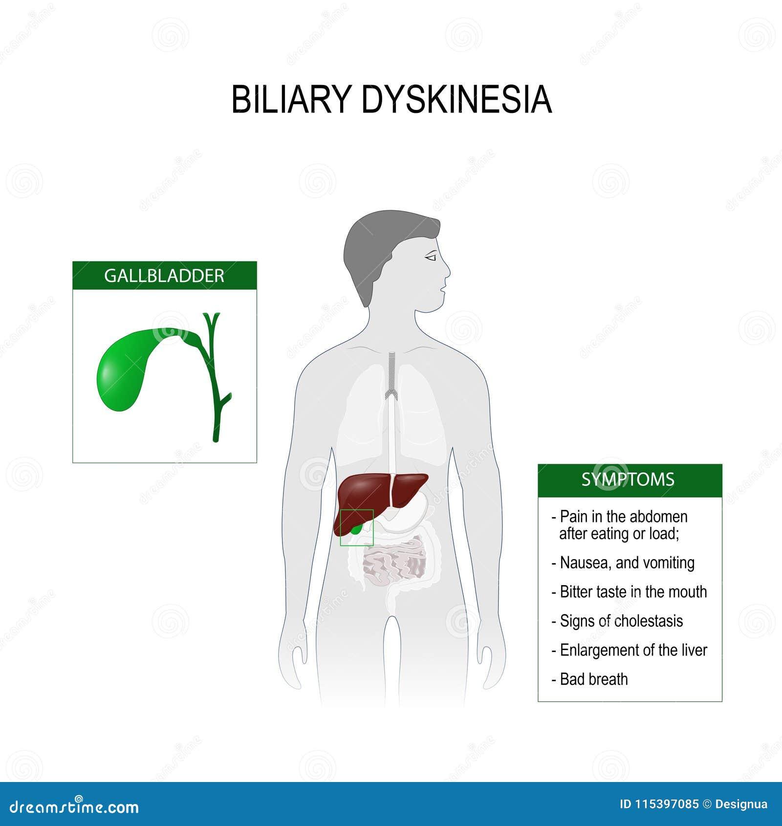 Biliary dyskinesia