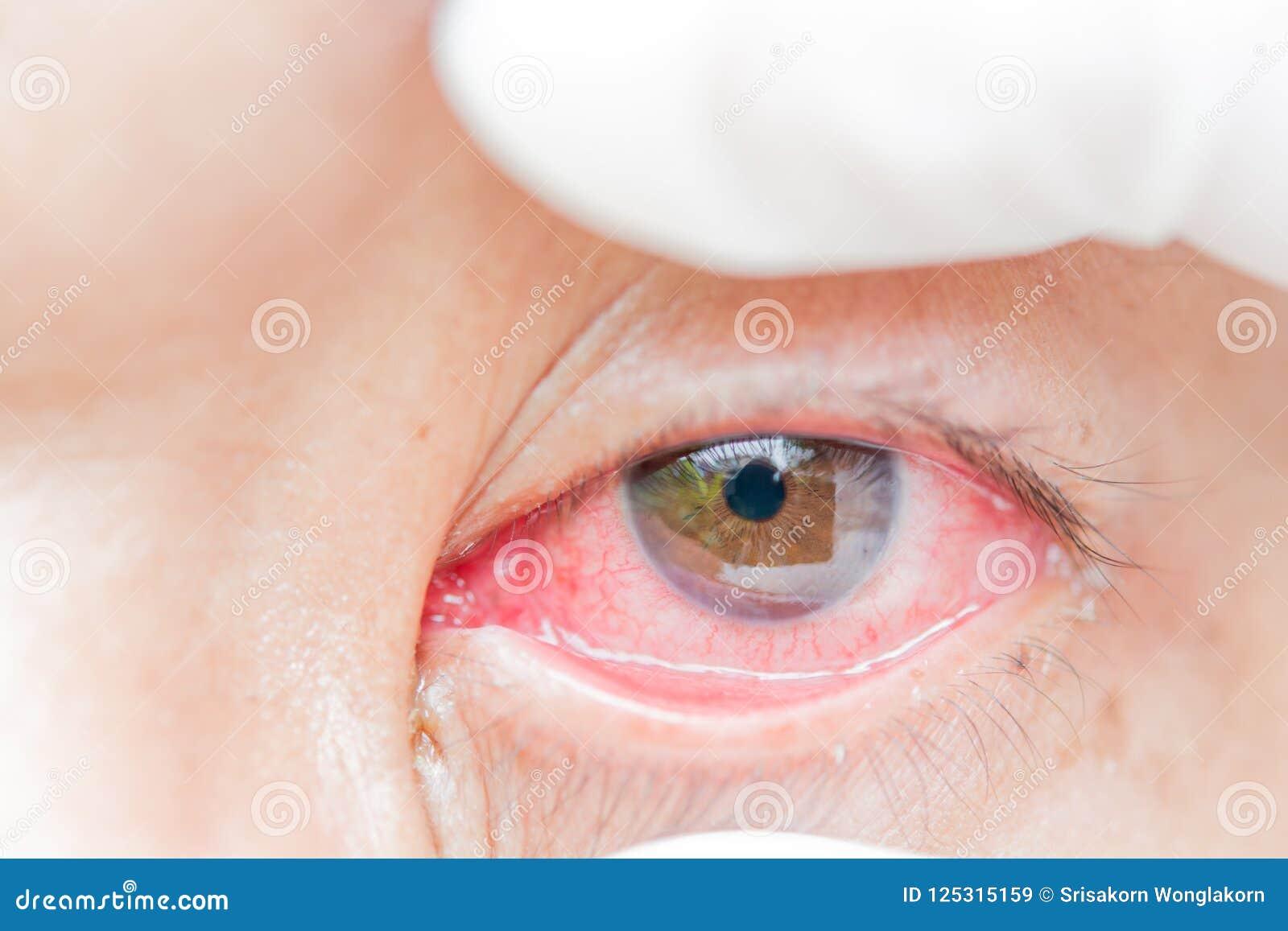 Bindvliesontsteking en ontsteking in de ogen