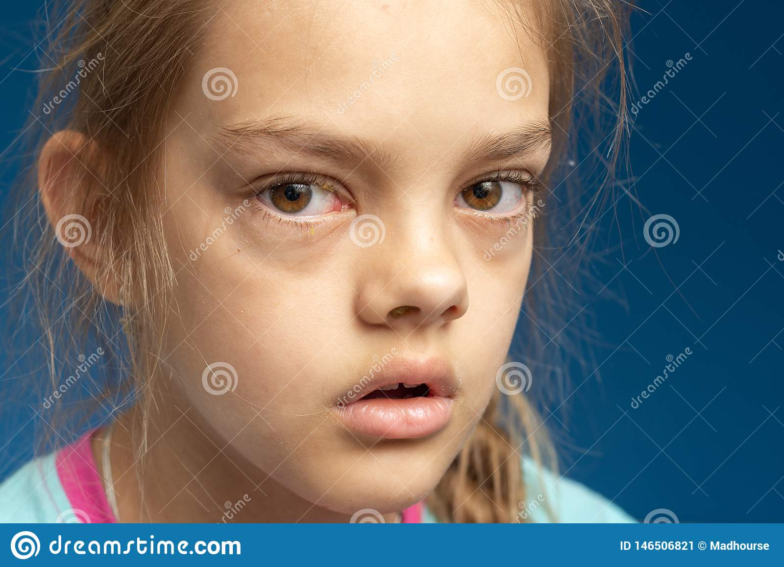 Bindvliesontsteking voor een tien éénjarigenmeisje