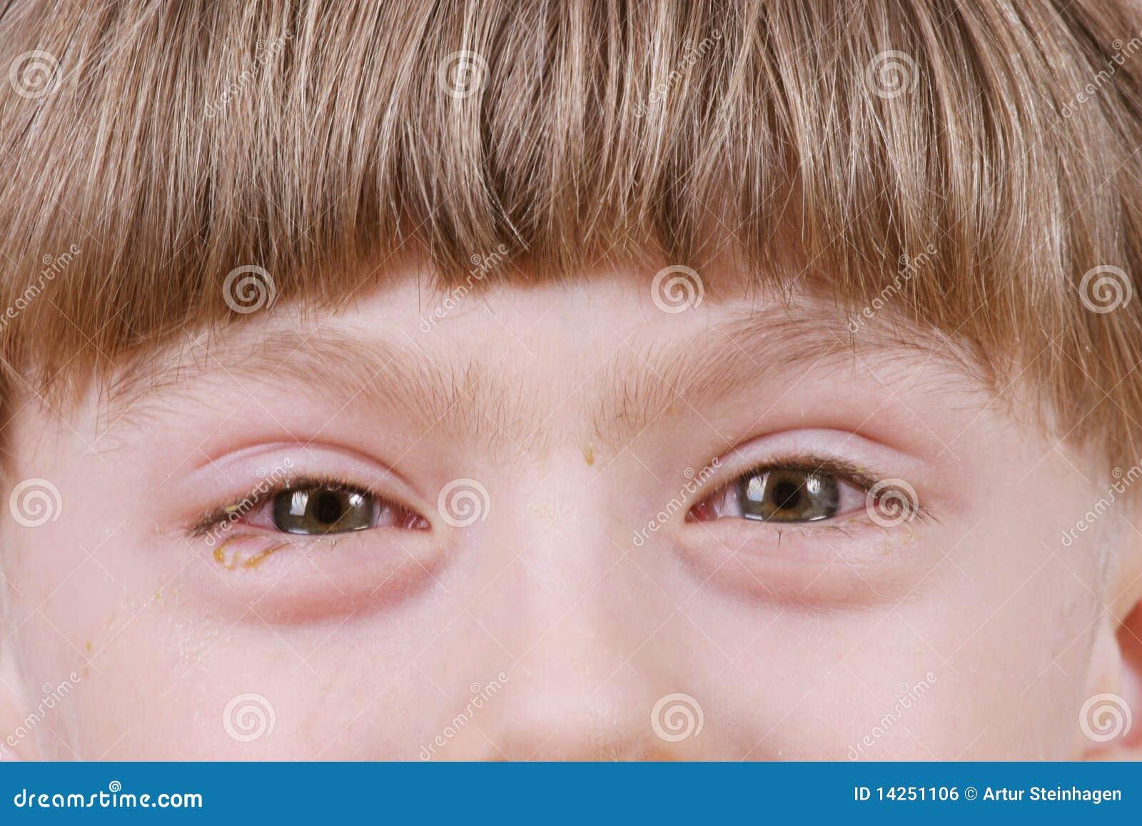 Bindvliesontsteking - zieke allergische ogen