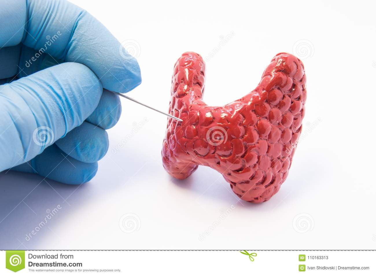 A biopsy of the thyroid: what is it, how is it done Thyroid biopsy: preparation, interpretation of test results, consequences