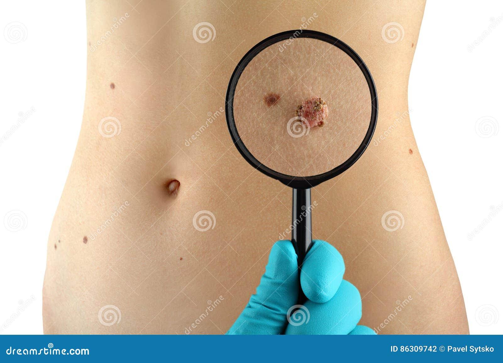 Birthmark Dermatologe überprüft Mole
