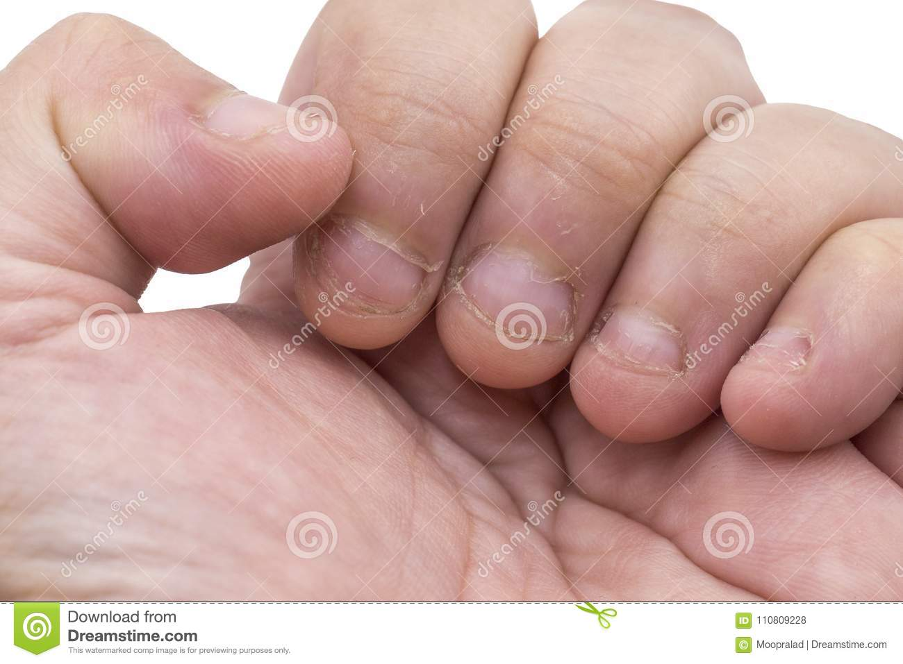 Bitten fingers closeup on white background with clipping path
