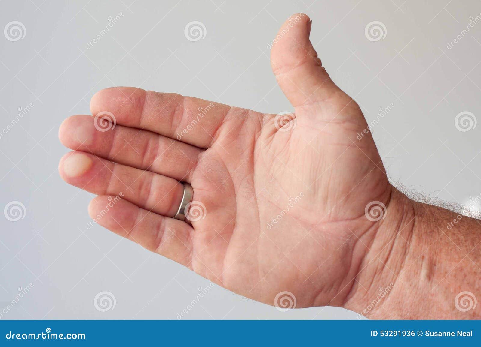 blåsor på fingrarna