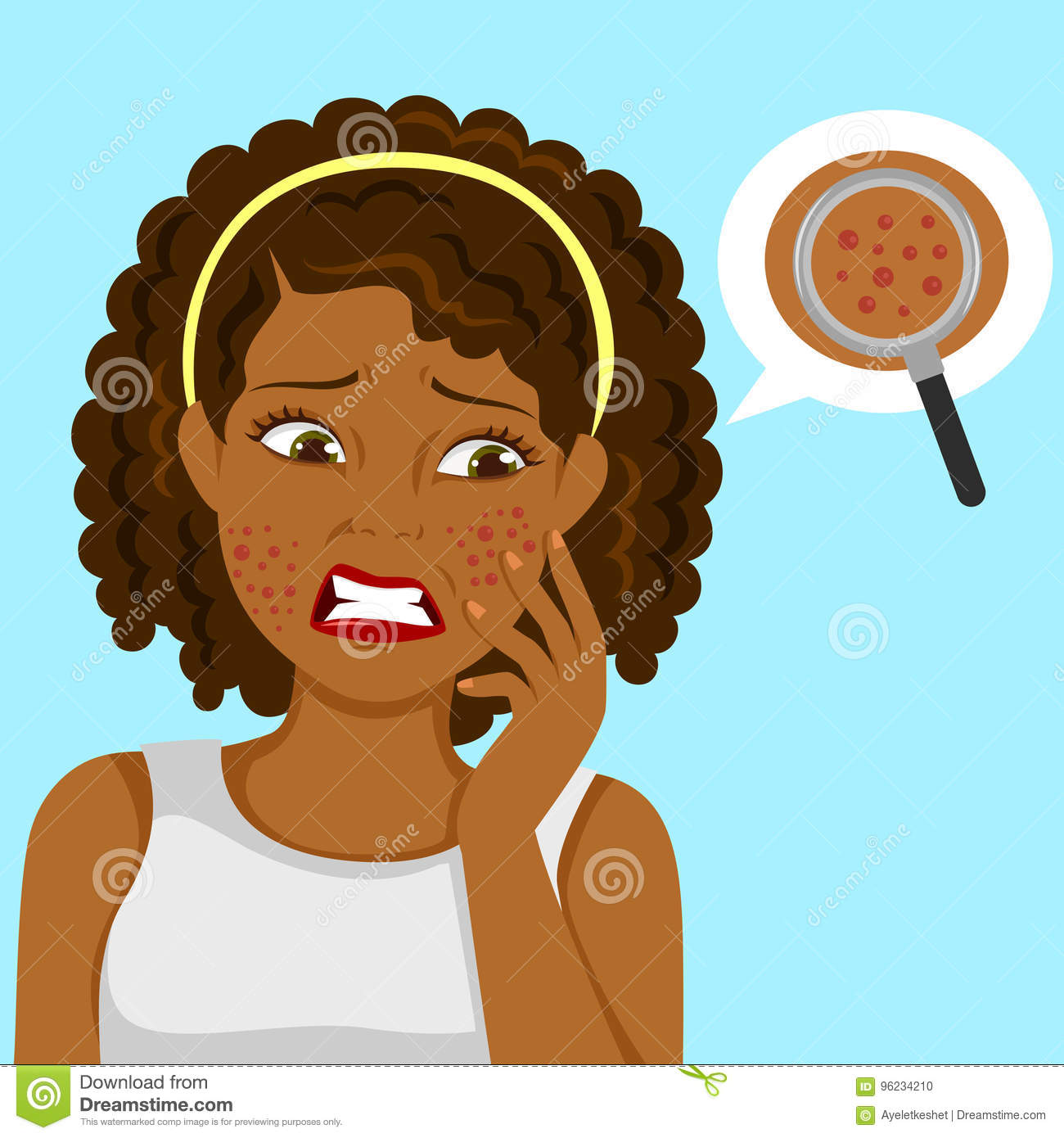 Black Girl With Pimples Stock Vector Illustration Of Cosmetology