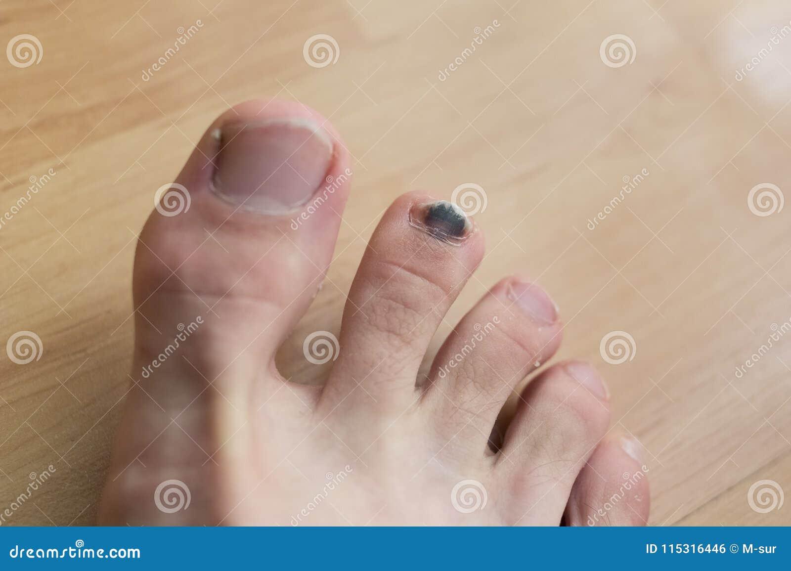 Black toenail after injury stock photo. Image of finger - 115316446