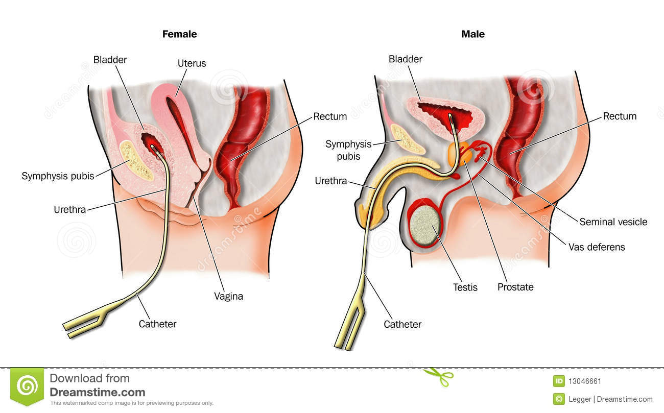 Bladder Catheters In Situ Stock Image Image 13046661