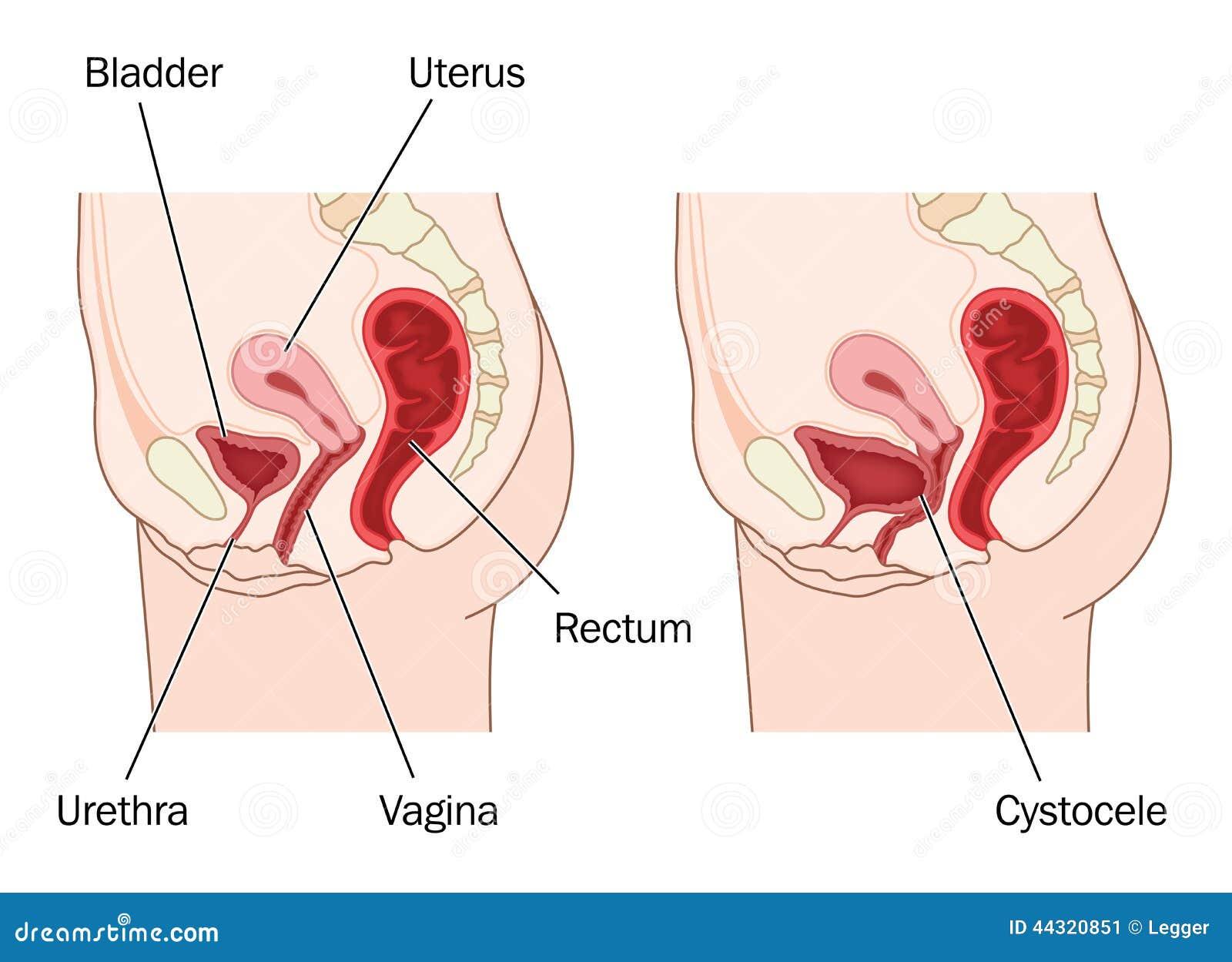 Предметы в мужской уретре 2 фотография