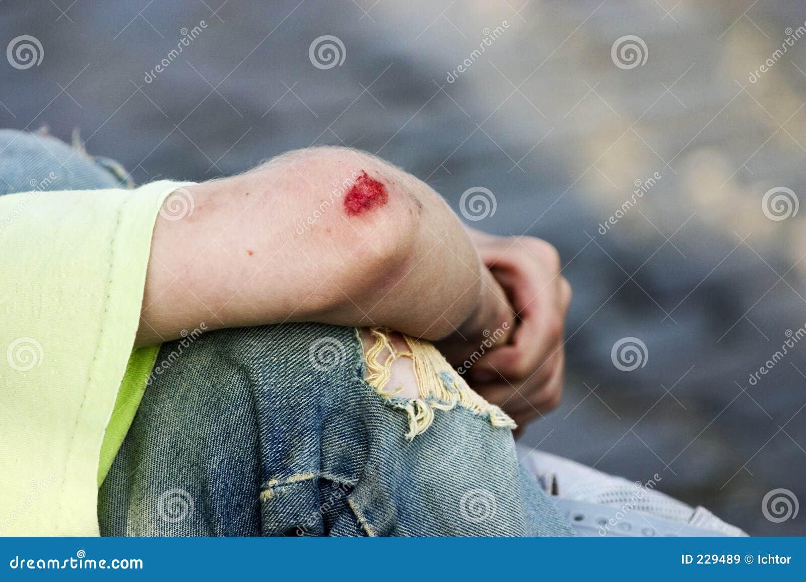 Bleeding Elbow Royalty Free Stock Images Image 229489