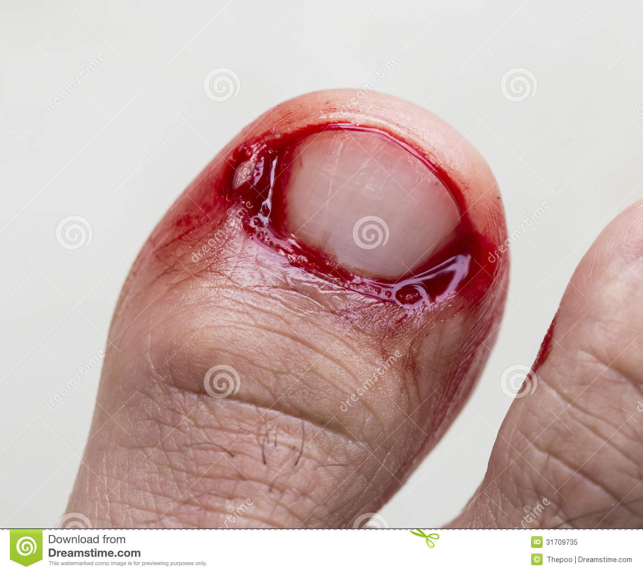 Man sucks bleeding toe for $100 (viewer discretion) - YouTube