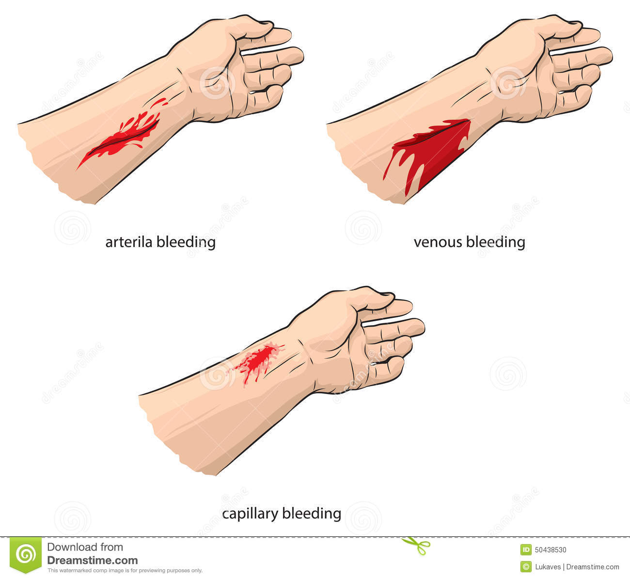 bleeding stock vector - image: 50438530, Skeleton