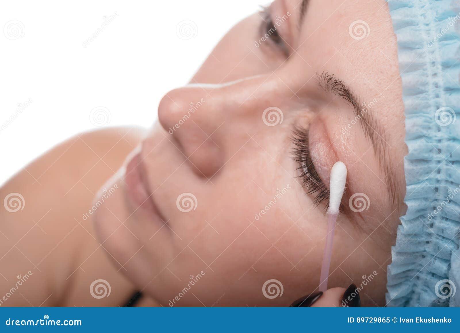 Blefaroplastica della palpebra superiore