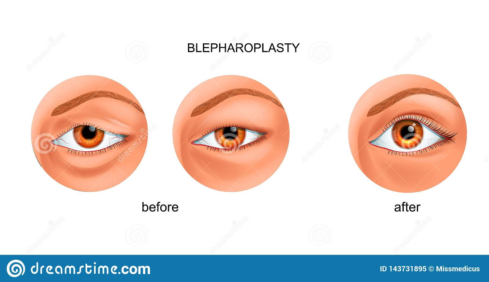 Blepharoplasty του overhanging βλέφαρου και του ασιατικού βλέφαρου