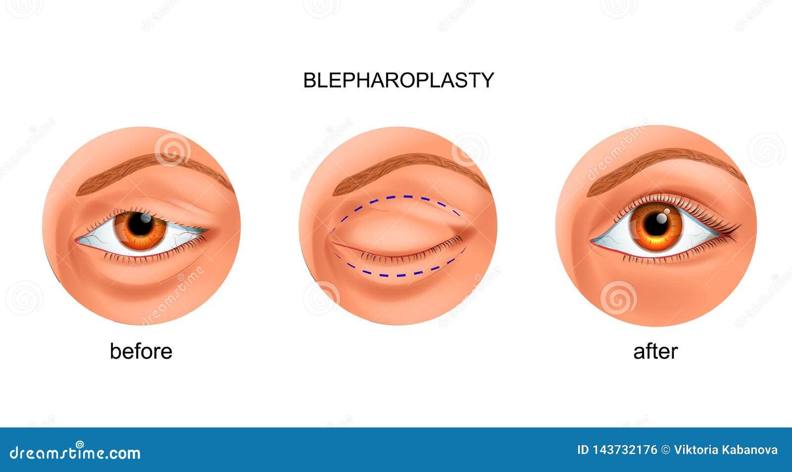 Blepharoplasty del párpado sobresaliente