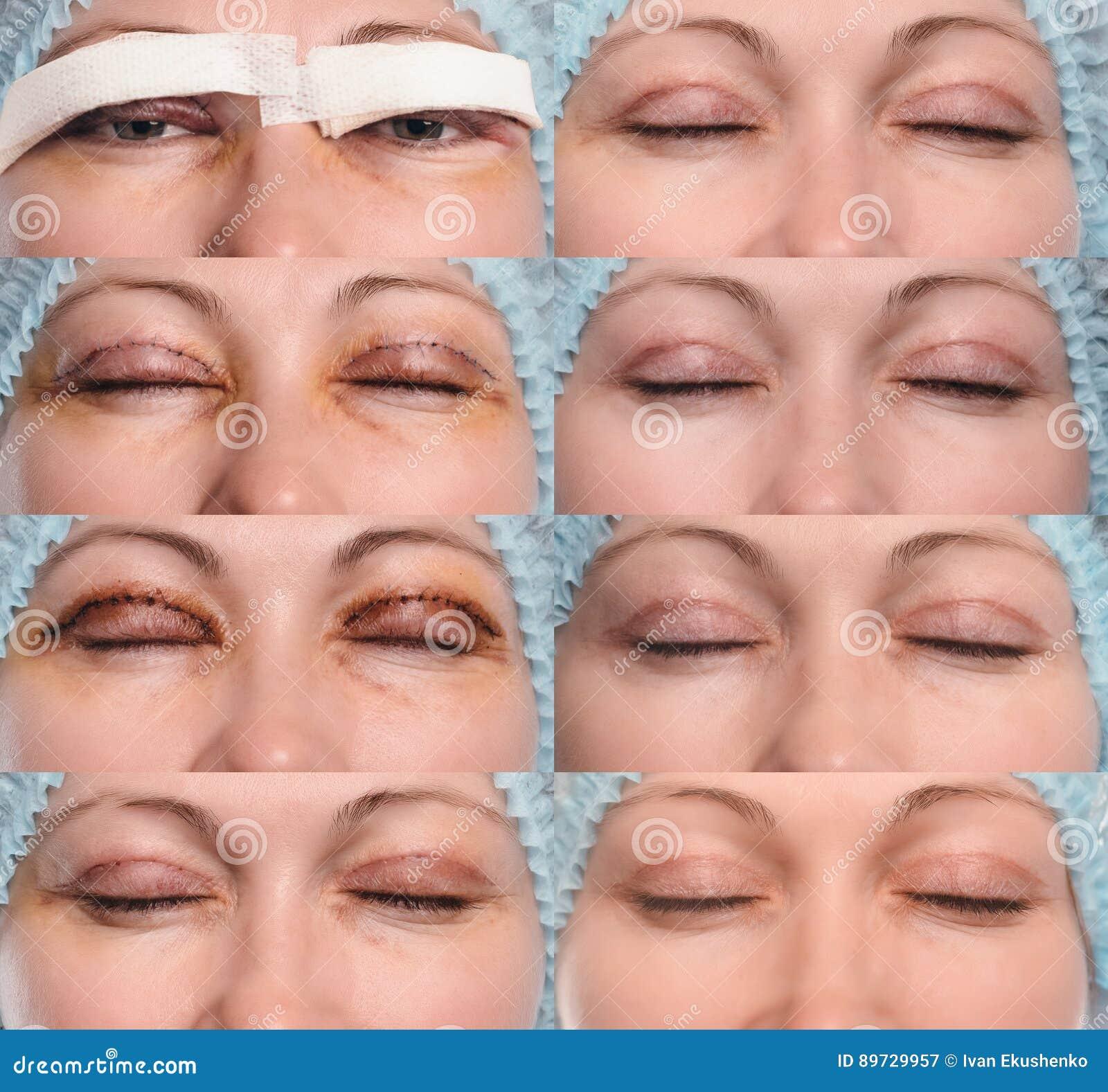 Upper blepharoplasty recovery photos Eyelid Surgery (Blepharoplasty) - Recovery and After-care