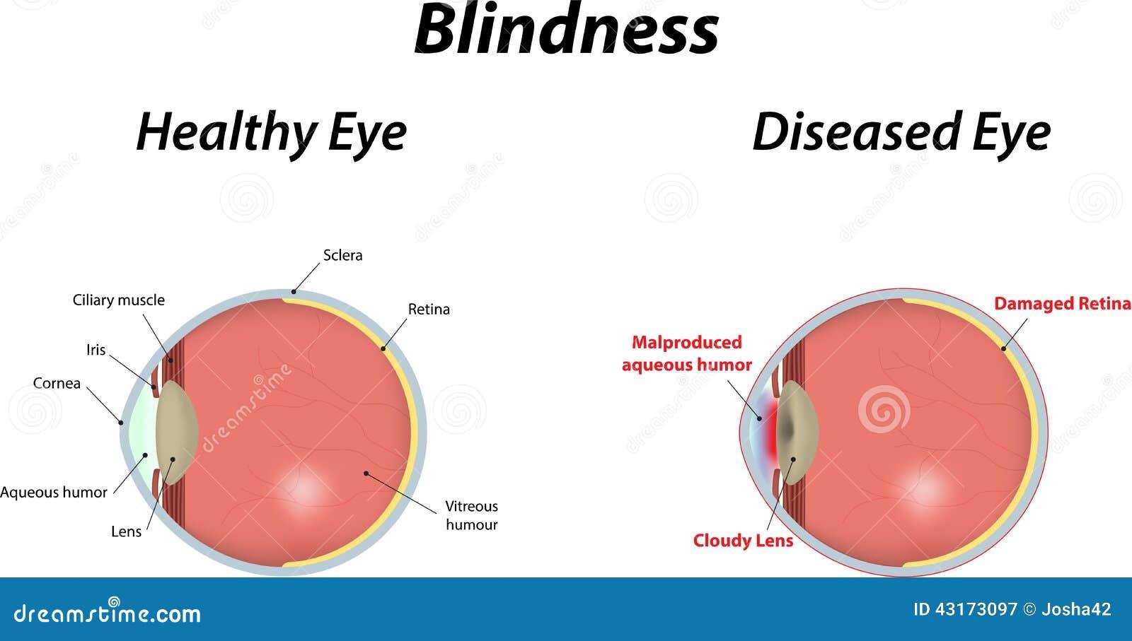Blindness Stock Vector Image 43173097