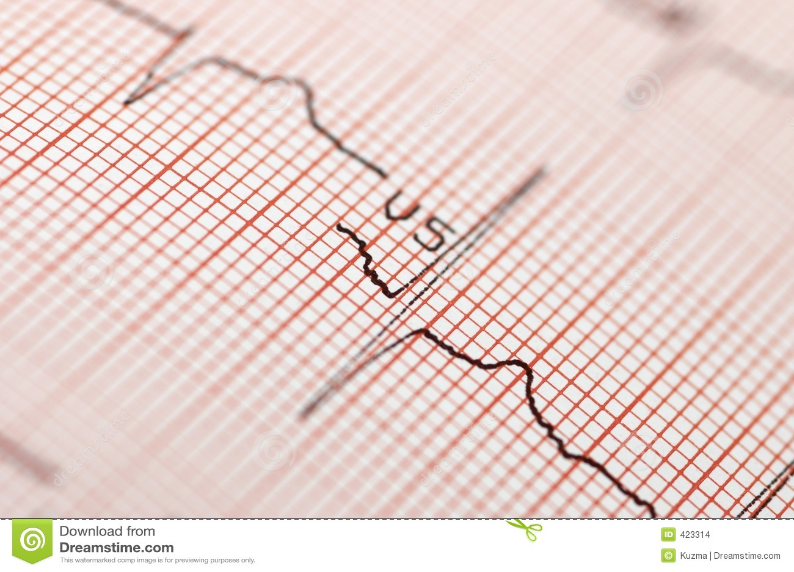 Blisko elektrokardiogram.