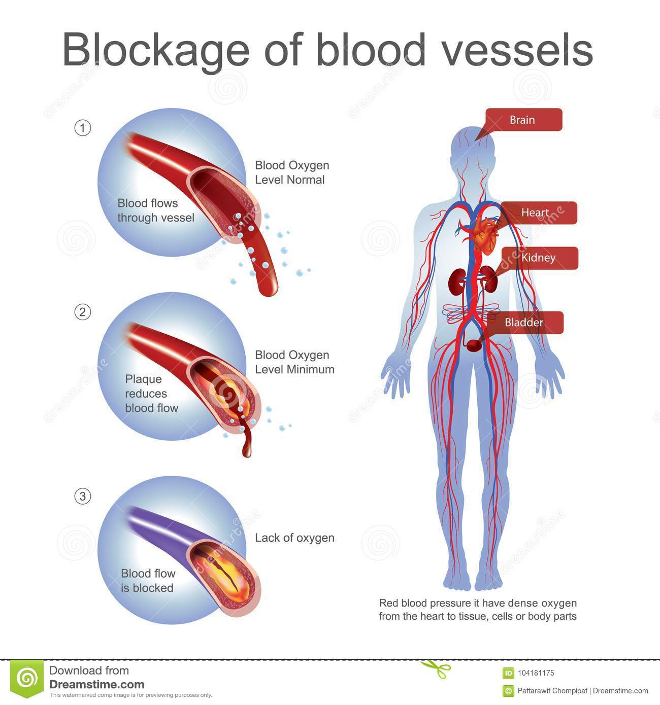 Blockage of blood vessels stock vector illustration of part download blockage of blood vessels stock vector illustration of part 104181175 ccuart Image collections