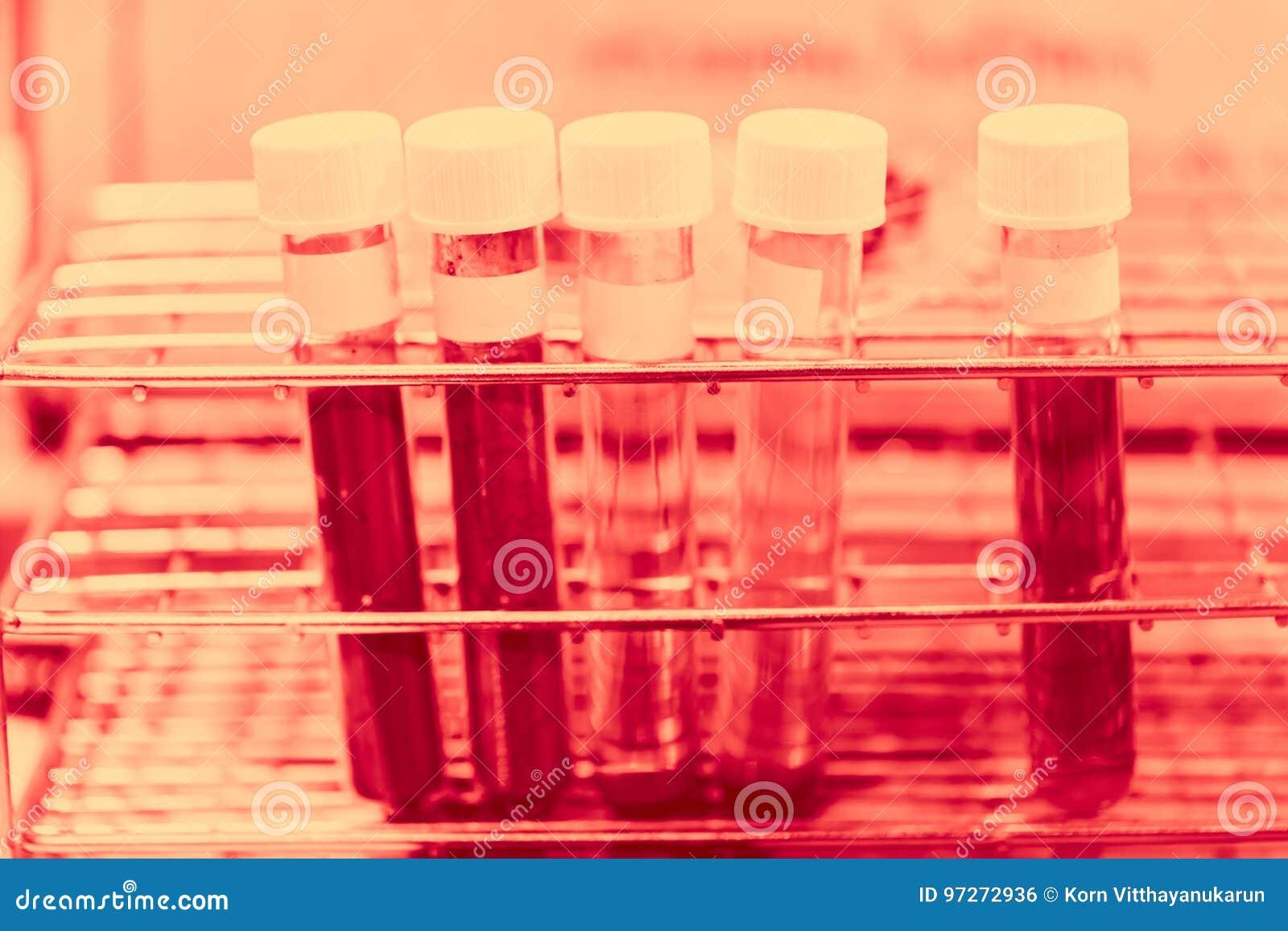 Blodgrupp i kemiskt labbbegrepp för medicinsk forskning