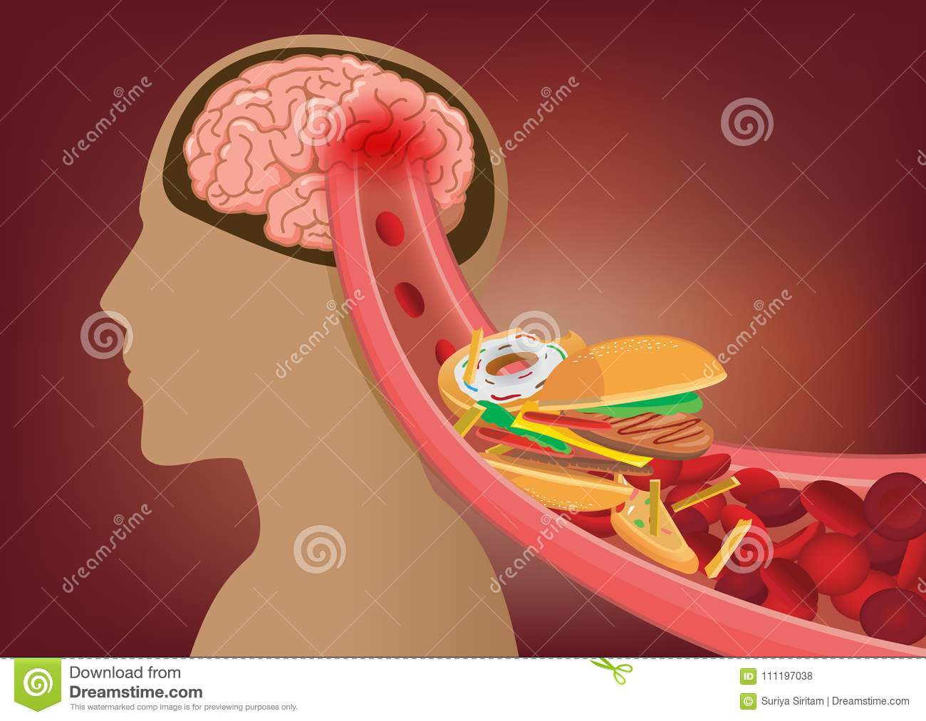 Blood can`t flow into human brain because fast food made clogged arteries.