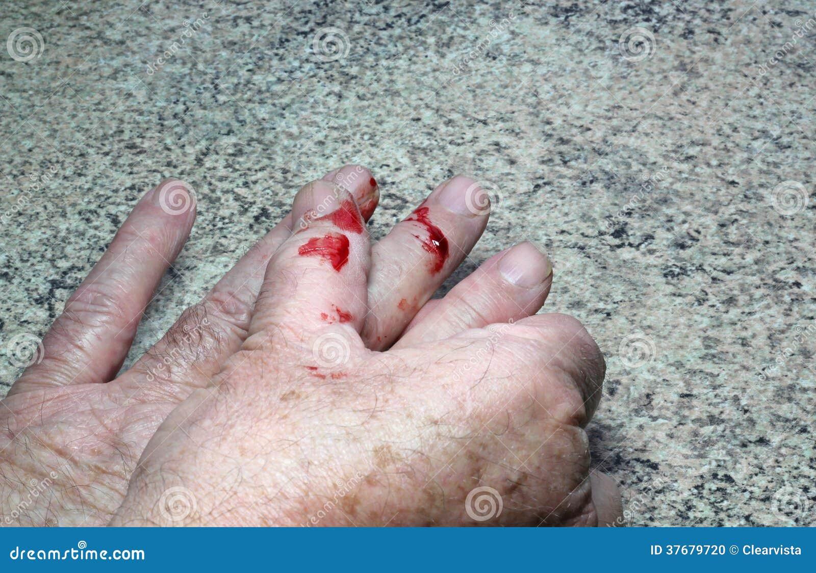 how to stop bleeding cut on finger