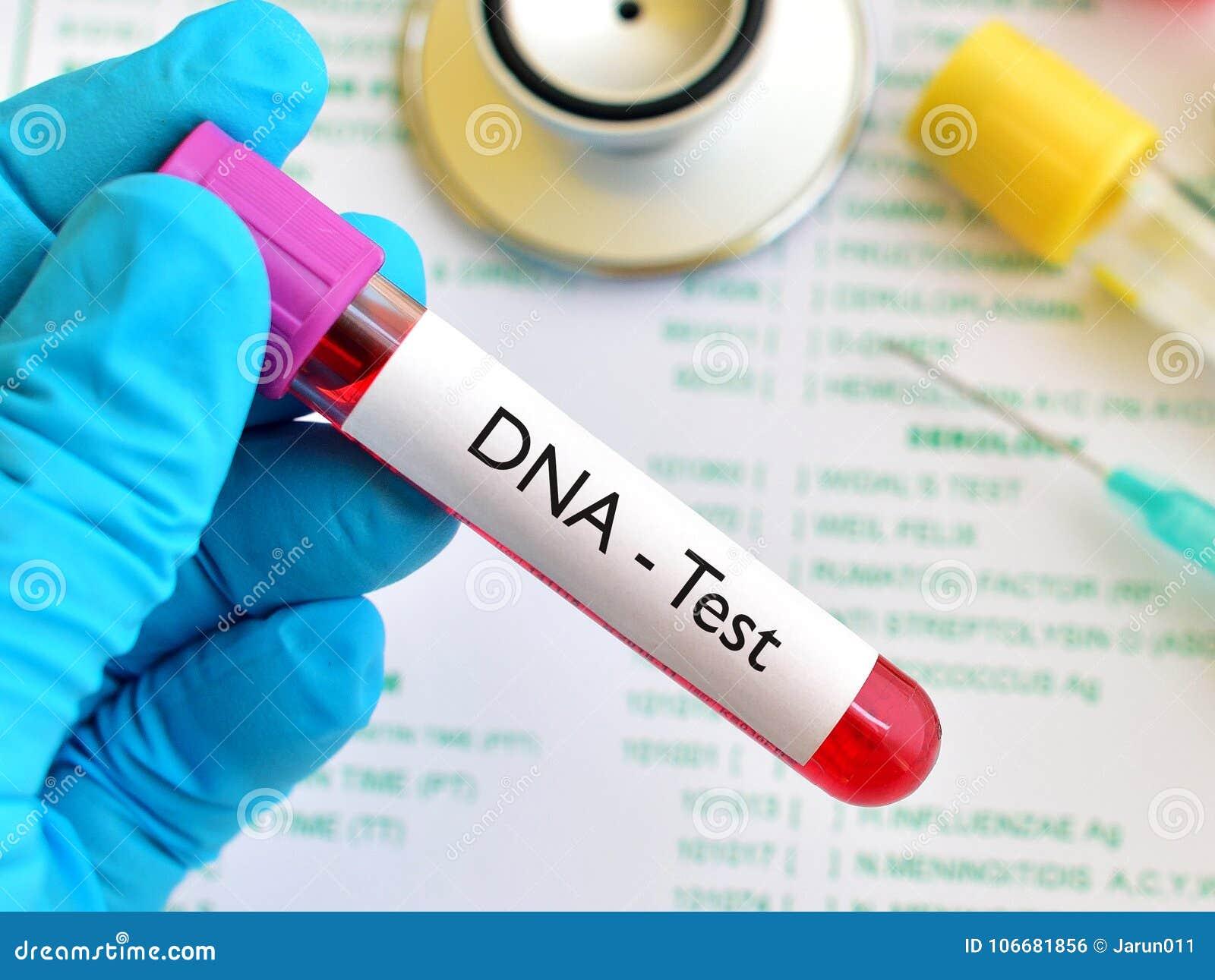 Blood for DNA test