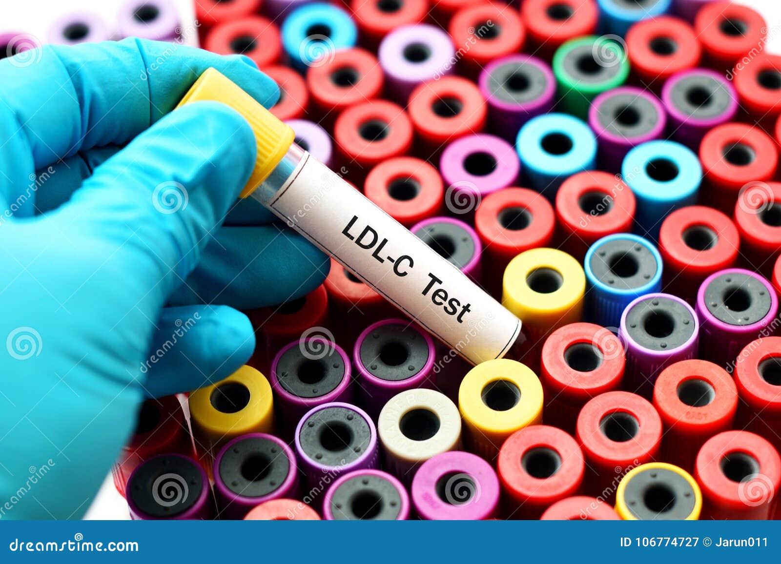 Blood for LDL cholesterol test