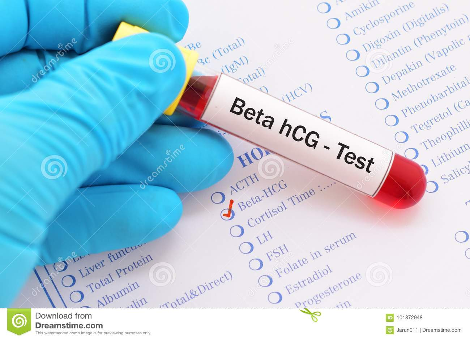 Beta hCG test stock photo. Image of ovarian, ovary