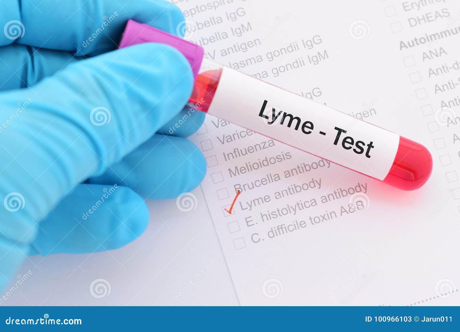 Lyme disease test stock image  Image of infection, immunology